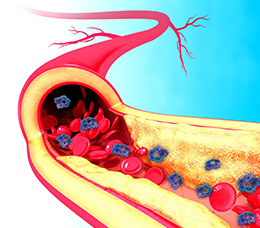 Recognizing Residual Inflammatory Risk and Preventing Recurrent Events in Patients With Atherosclerotic Cardiovascular Disease