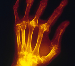 Targeting IL-6 Signaling in the Treatment of Rheumatoid Arthritis